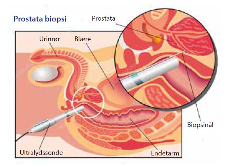 Prostata biopsi